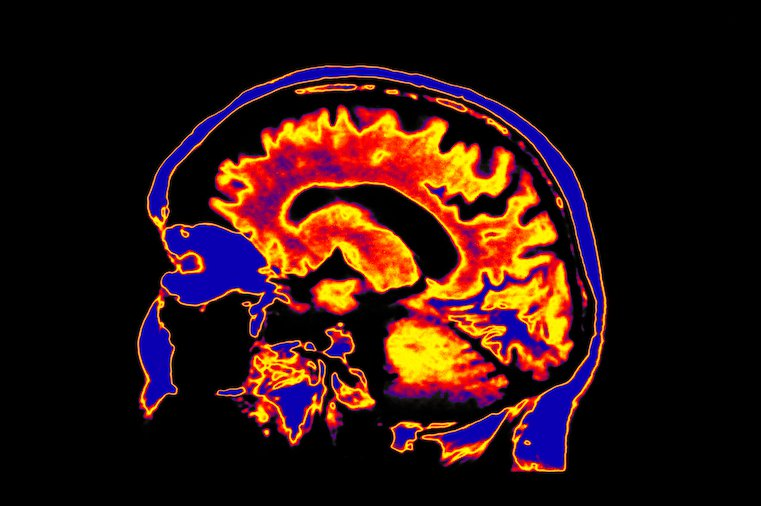touchpoints-brain-scan-stress-and-tech